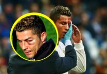 Cristiano Ronaldo's swollen eye injury